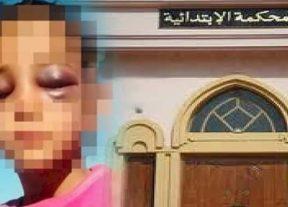 عــاجـل:القضاء يدين الأستاذ المتهم بتعنيف تلميذة تارودانت